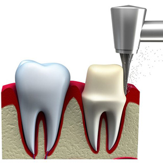 Dental Crowns Tooth Preparation