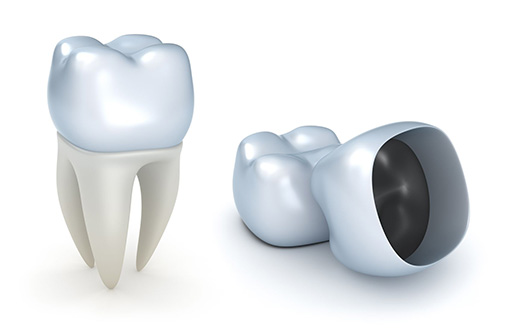 Dental Crowns Experienced Dentist in commerce