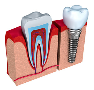 Implant Dentistry in Michigan
