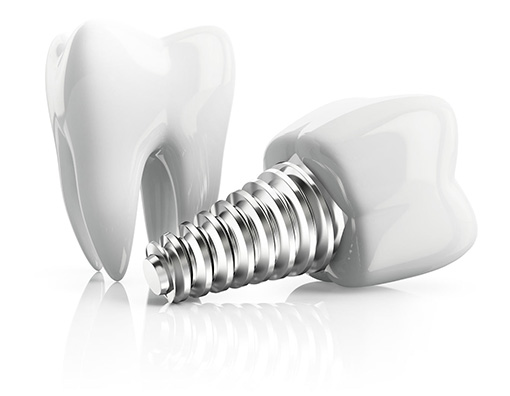 Dental Implants - near commerce michigan