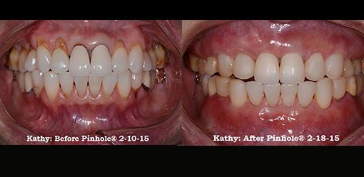 Macomb County MI Pinhole Surgical Technique and Pinhole Gum Rejuvenation