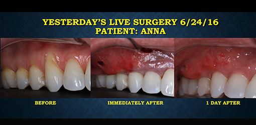 Oakland County MI Pinhole Surgical Technique and Pinhole Gum Repair