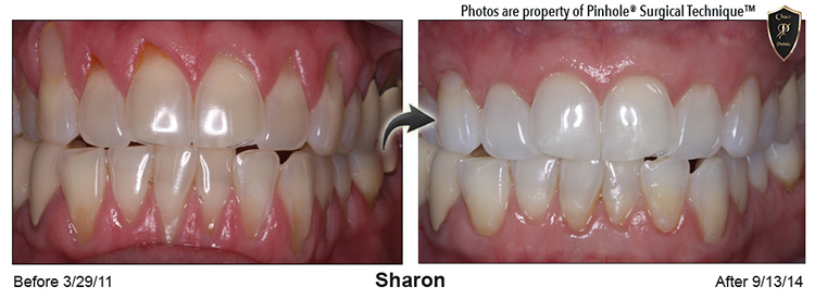 Wayne County Michigan - Pinhole Surgical Technique, Family Dentist