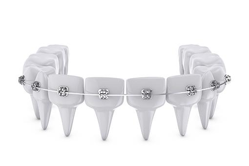 Dental Braces in Pontiac MI