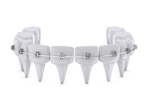 Dental Braces in Detroit MI