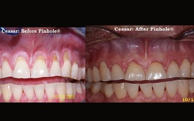 Signs of Gum Recession and What to Do About It